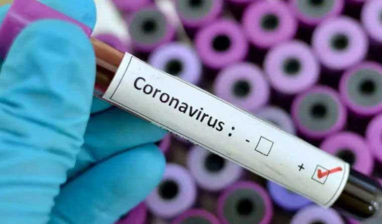 Este jueves fueron confirmados 132 nuevos casos de COVID-19 y se registraron 4 nuevas muertes