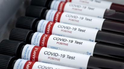 Coronavirus: ascienden a 225 las víctimas fatales y 4.532 los infectados en el país