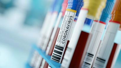 Coronavirus: suman 293 las muertes y 5611 los casos confirmados en el país