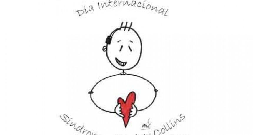 28 de Mayo; Día Internacional del Síndrome de Treacher Collins