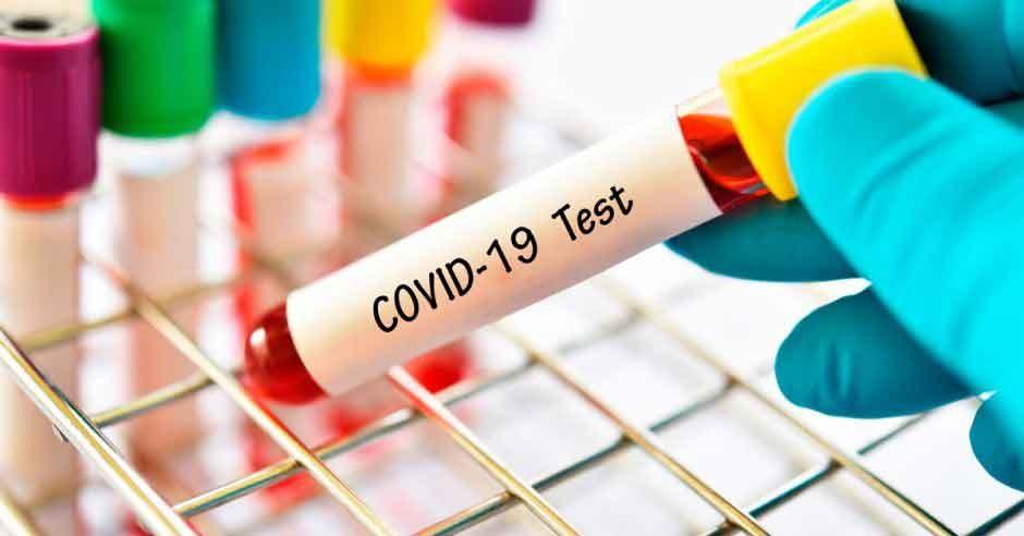 Coronavirus en la provincia; Registro de casos positivos en las últimas 24 horas