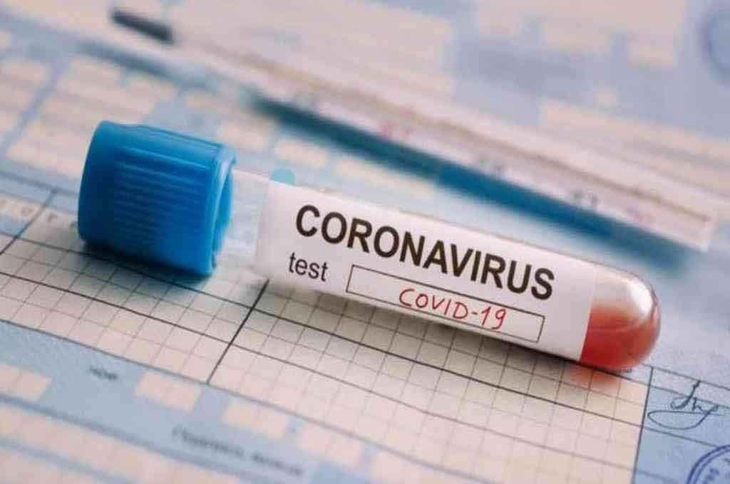 Coronavirus en Argentina; Récord y preocupación: 10.550 casos y 276 muertos en 24 horas