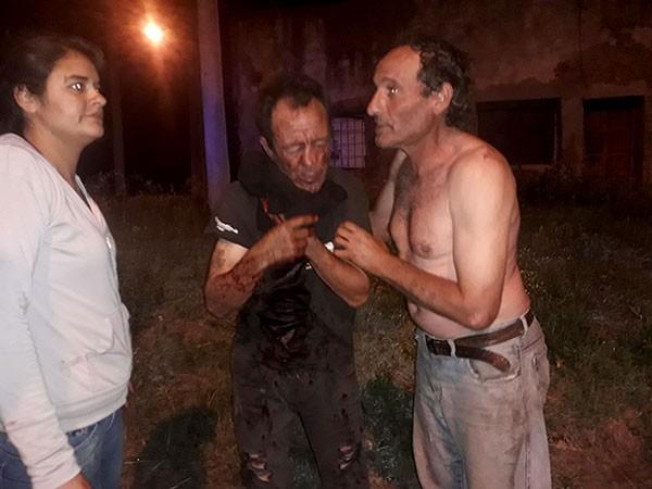 Noticia de InfoBis: Un herido de consideración dejó la explosión de una garrafa en una esquina del Barrio Las Flores